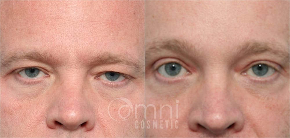 0001_OmniCosmetic_Wayzata_face_foreheadlift_B&A_Patient1_front