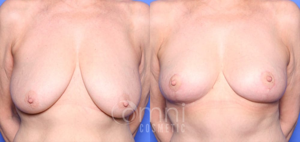 OmniCosmetic_Breast-lift_B&A_Patient 1_Front