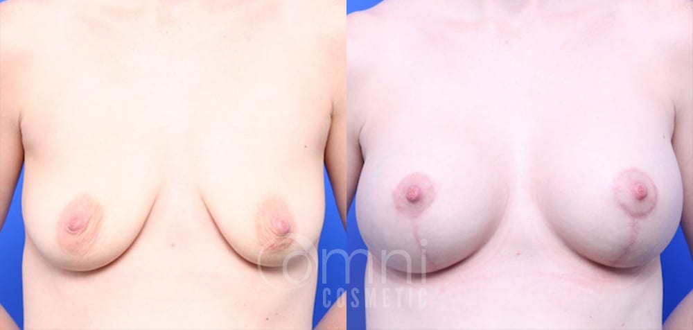 OmniCosmetic_Breast-lift_BreastAugmentation_B&A_Patient 19_Front
