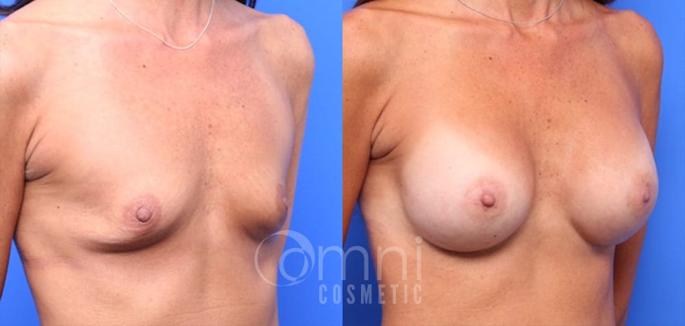 OmniCosmetic_BreastAugmentation_B&A_34_Patient 22_Oblique