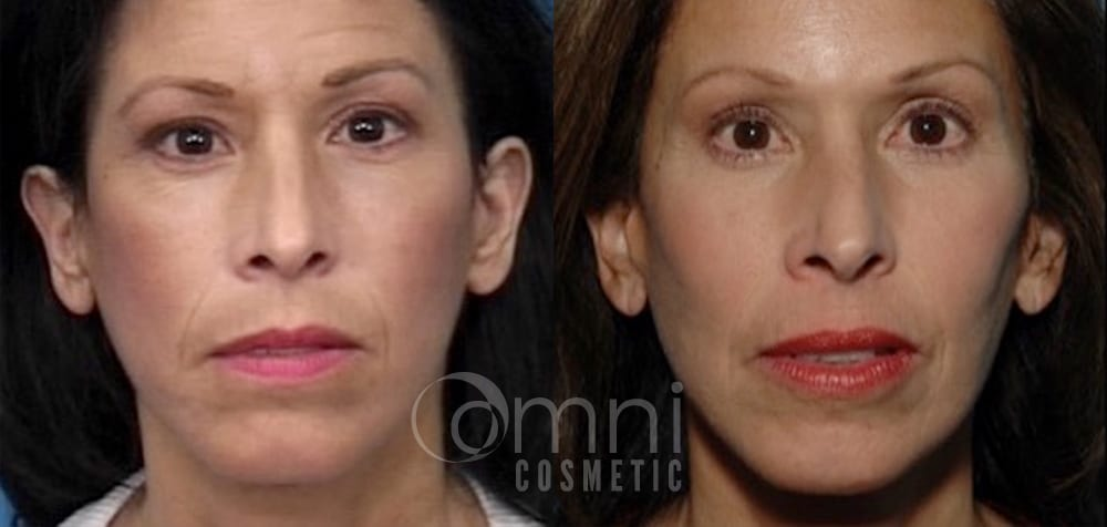 OmniCosmetic_Cheek_Implant_B&A_Patient 1_Front