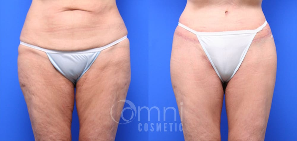 OmniCosmetic_Lower_Bodylift_B&A_Patient 3_Front