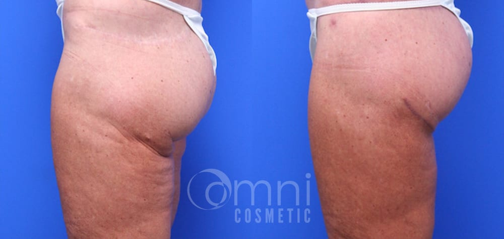 OmniCosmetic_Lower_Bodylift_B&A_Patient 4_Side