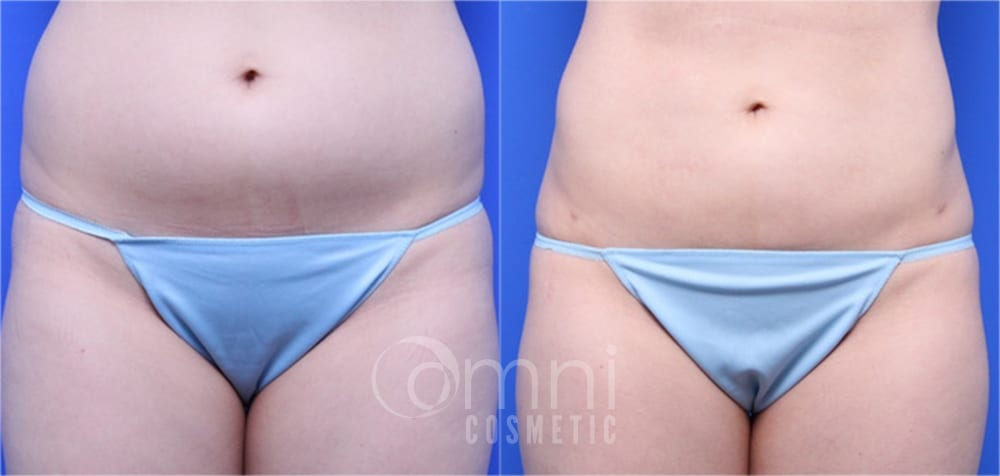 OmniCosmetic_Wayzata_body_liposuction_B&A_Patient6_front