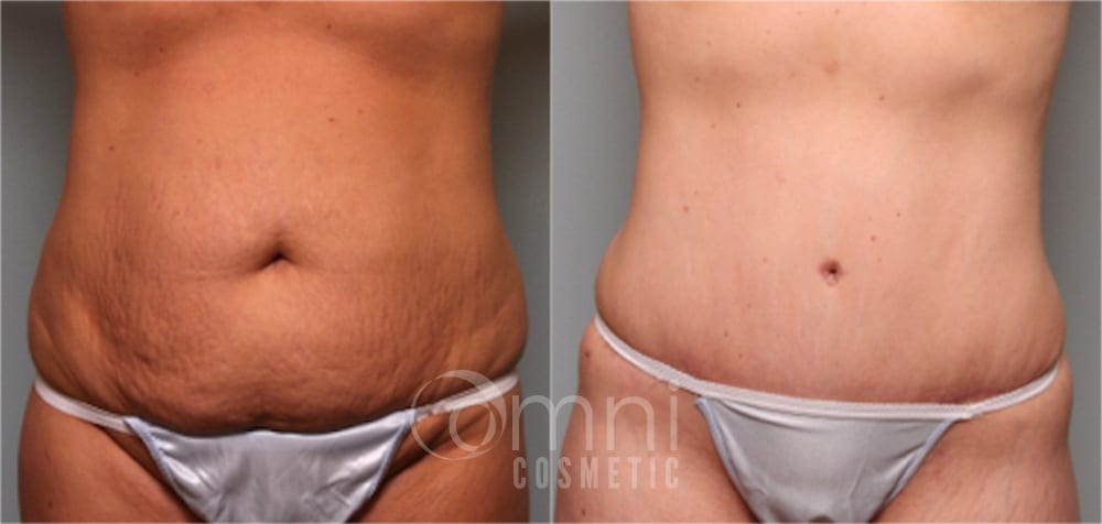 OmniCosmetic_Wayzata_body_tummy-tuck_B&A_Patient29_front