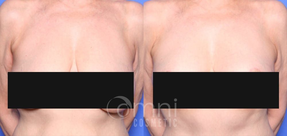 OmniCosmetic_Breast-lift_B&A_Patient 1_Front_CENSORED