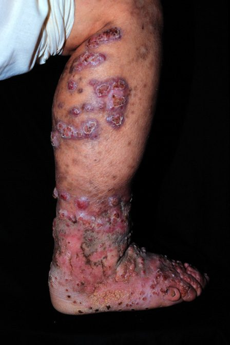 Chromoblastomycosis-