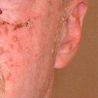 Actinic Keratoses Treated with Efudex