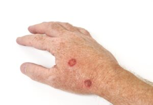 Mature Male's Hand with Warts Copy 1