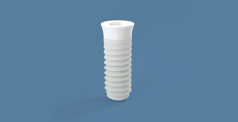 Central_Florida_Oral_Surgery_Dr.Jaffal_Implant, white