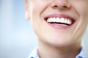 Porcelain_Veneers_VS_Teeth_Whitening