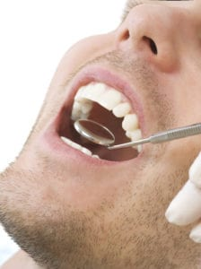 Male Mouth With Dental Inspection Mirror Held Between Teeth by Hand With Rubber Gloves v4