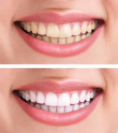 Stained Teeth Vs White Teeth