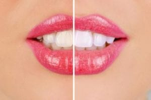 White Teeth Comparison