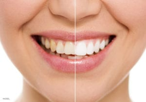 San Francisco Female Face Smiling Showing Before and After Veneers