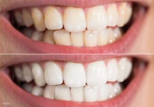 San Francisco Female Mouth Close Up Showing Teeth Whitening Results With Veneers