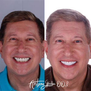 skoulas-dds-san-francisco-full-mouth-reconstruction-patient-15-2