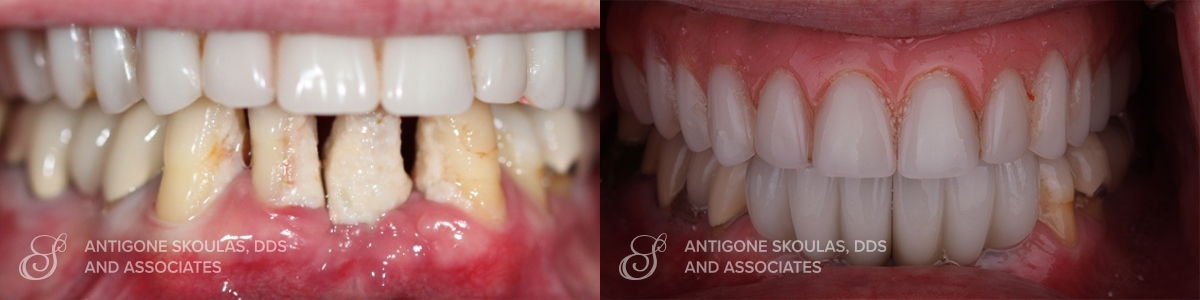 skoulas_dds_sanfrancisco_beforeandafter_072120_0001_Implant Crowns & Bridges