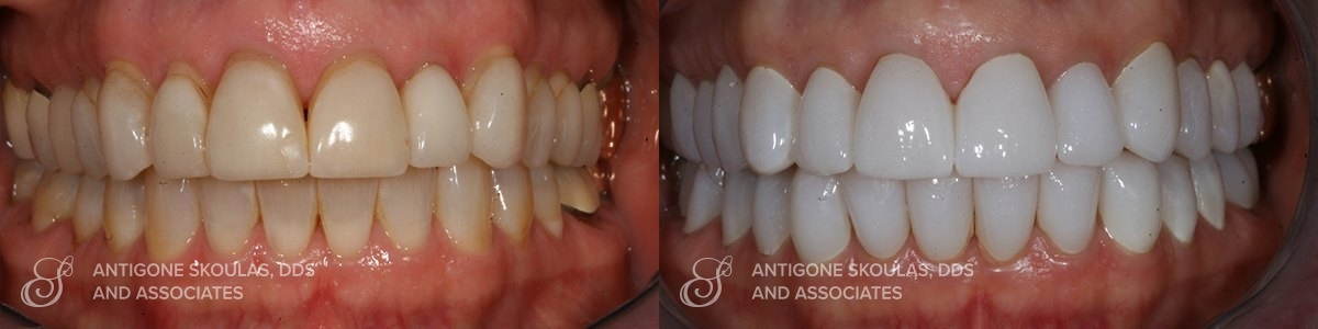 skoulas_dds_sanfrancisco_beforeandafter_Reconstruction_Crowns_Patient_1