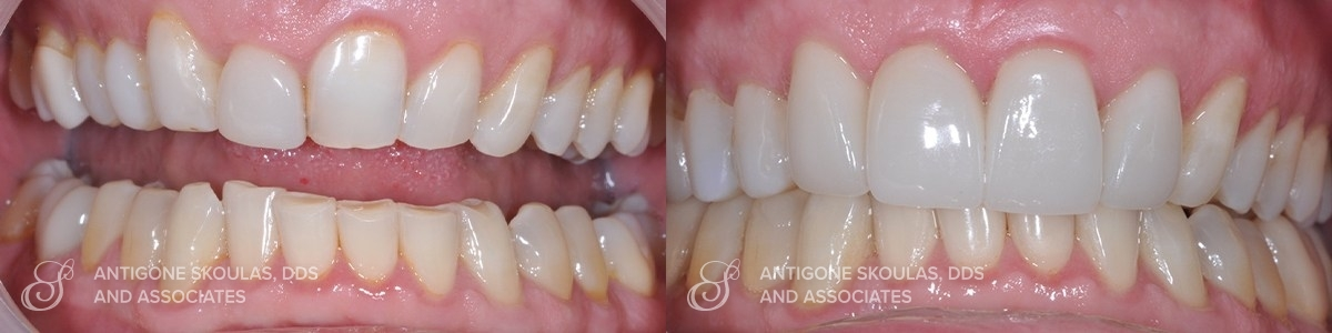 skoulas_dds_sanfrancisco_beforeandafter_Reconstruction_Crowns_Patient_2