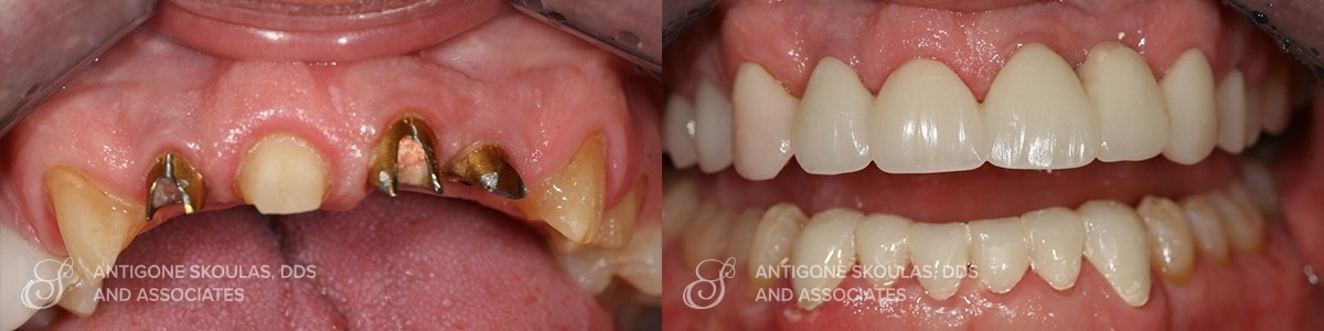 skoulas_dds_sanfrancisco_beforeandafter_Reconstruction_Crowns_Patient_4