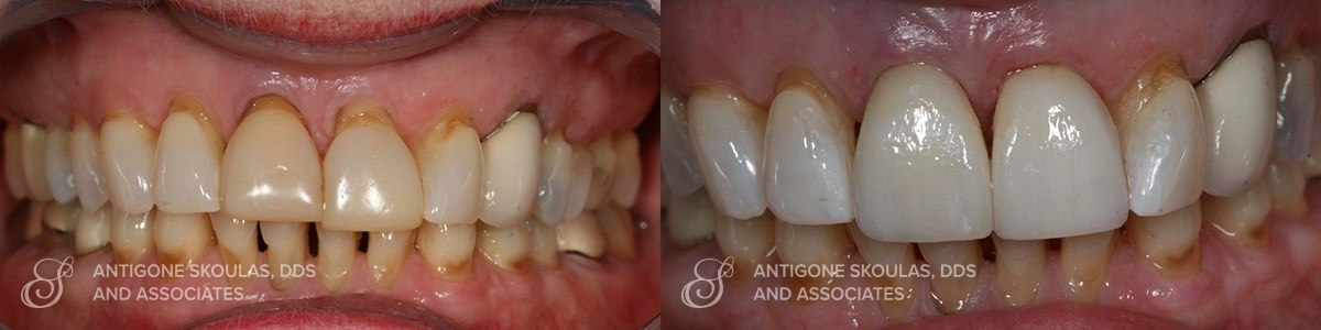 skoulas_dds_sanfrancisco_beforeandafter_Reconstruction_Crowns_Patient_5