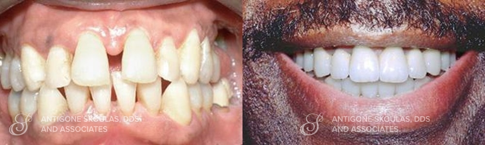 skoulas_dds_sanfrancisco_beforeandafter_Smile-Makeover_Patient_2-1