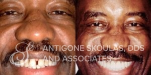 skoulas_dds_sanfrancisco_beforeandafter_Smile-Makeover_Patient_2-2