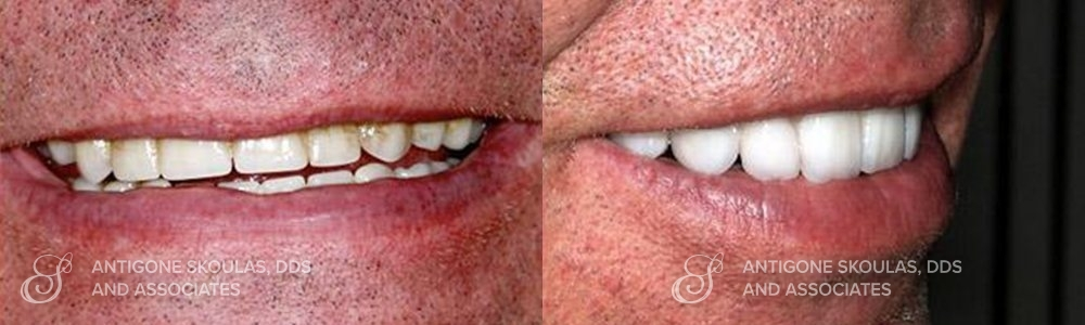 skoulas_dds_sanfrancisco_beforeandafter_dentalImplants_Patient_2-2