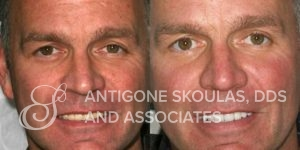 skoulas_dds_sanfrancisco_beforeandafter_dentalImplants_Patient_2-3
