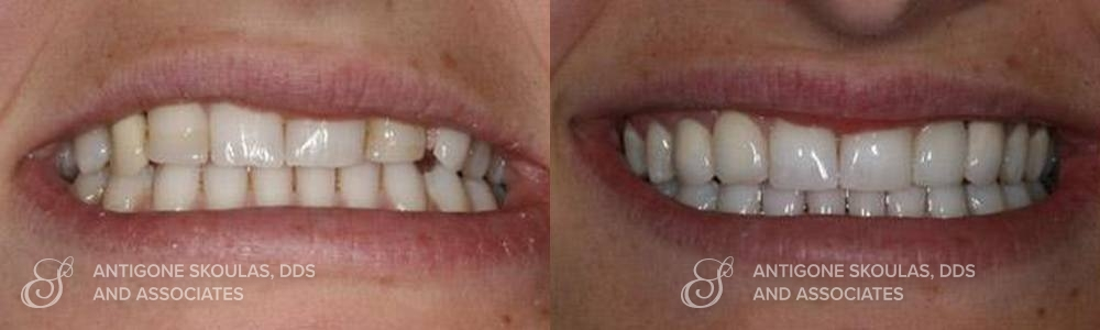skoulas_dds_sanfrancisco_beforeandafter_dentalImplants_Patient_3-2