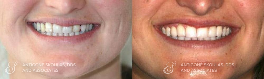 skoulas_dds_sanfrancisco_beforeandafter_dentalImplants_Patient_3-3