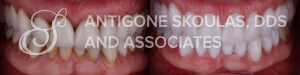 skoulas-dds-san-francisco-full-mouth-reconstruction-patient-15-1