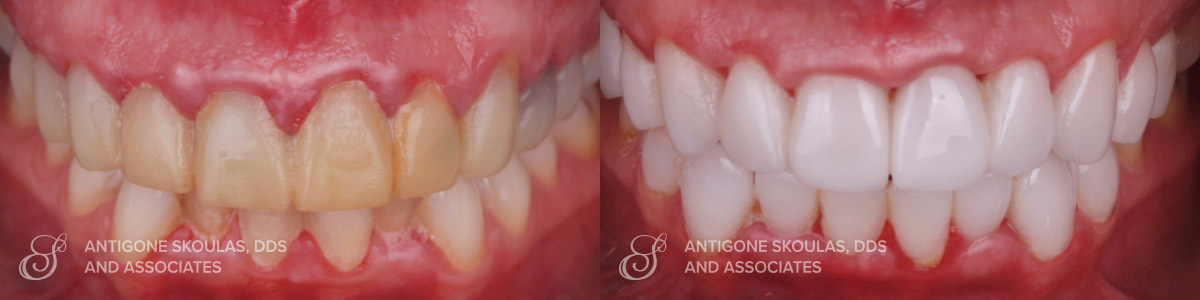 skoulas-dds-san-francisco-porcelain-crowns-patient-14-1