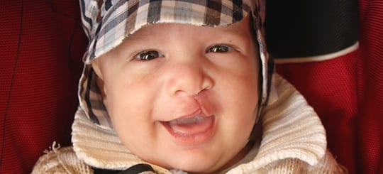 Cleft-Lip-and-Palate_opt