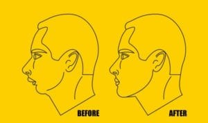 Double-Jaw-Surgery-768x452