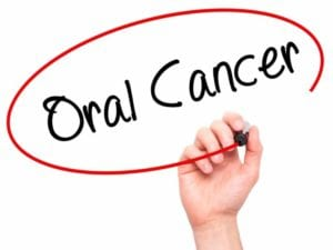 Oral-Cancer-OMS-768x576