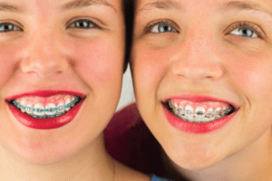 Surgical-Orthodontics-OMSNashville-768x512