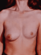 uneven breast surgery