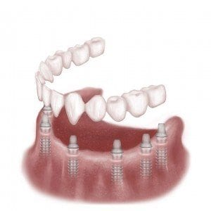 Category Image for Complete Teeth Replacement
