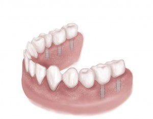 Category Image for Multiple Dental Implants
