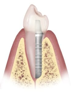 Dental Implant vs Real Tooth Comparison