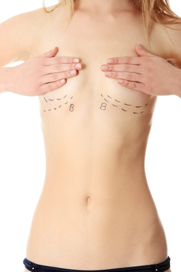 Female With Cut Lines Under Breasts Preparing for breast reduction surgery in dallas, tx