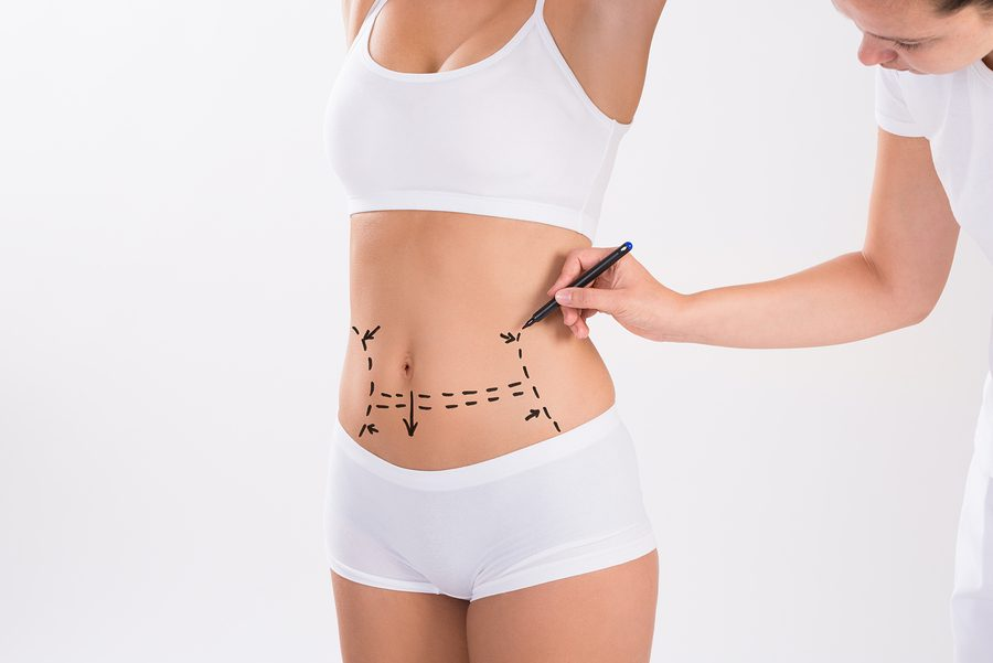 liposuction surgery dallas, tx