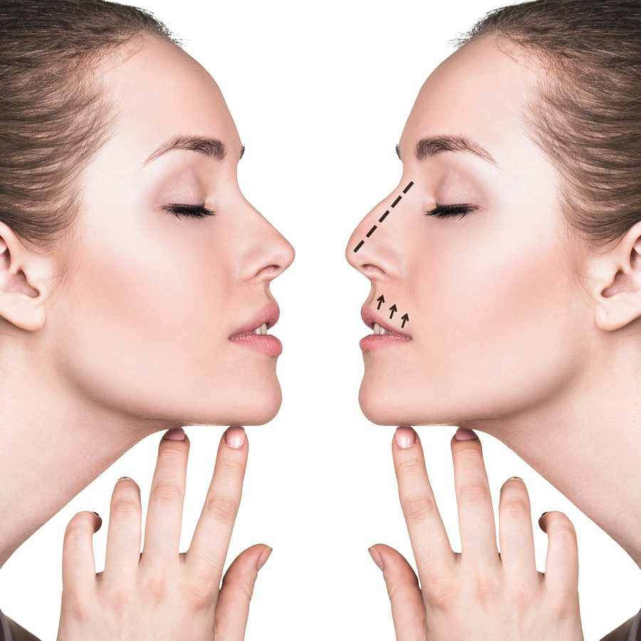 rhinoplasty dallas tx