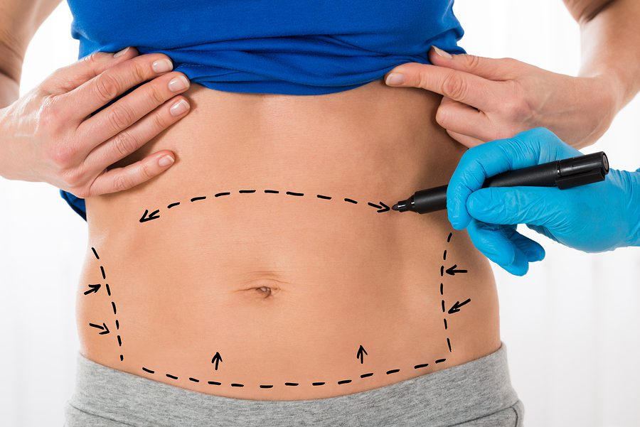 tummy tuck surgery dallas tx