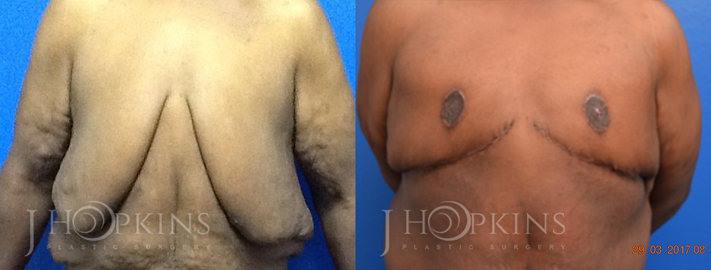 Patient 1 Before and After Male Breast Reduction Front View
