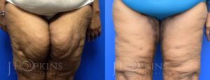 Patient 1 Before and After Thighplasty Front View
