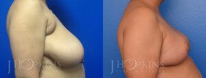 Patient 1 Before and After Breast Reduction Right Side