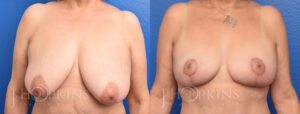 Patient 1 Before and After Breast Lift Front View